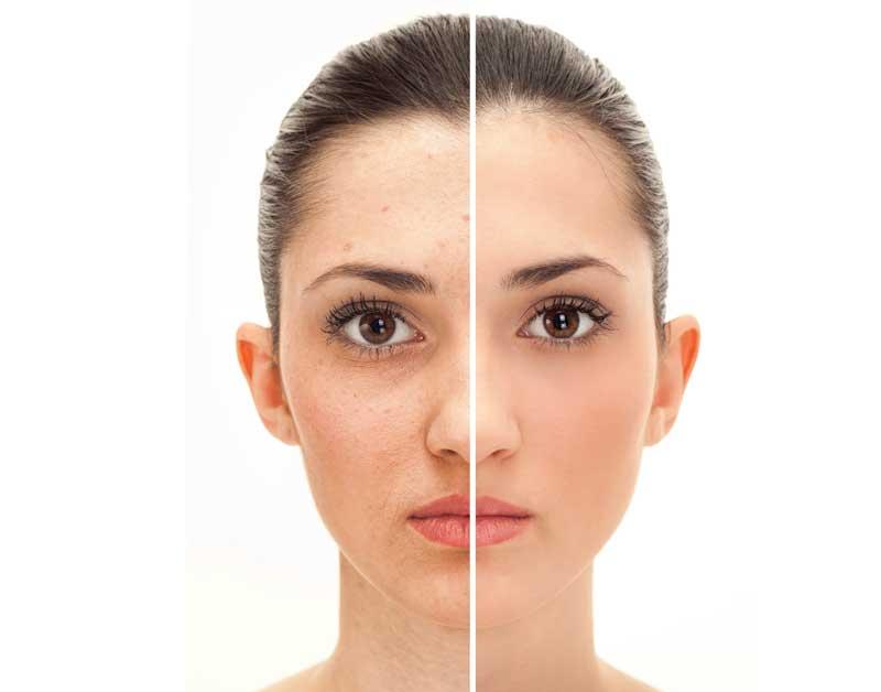 proces regeneracije kože lica
