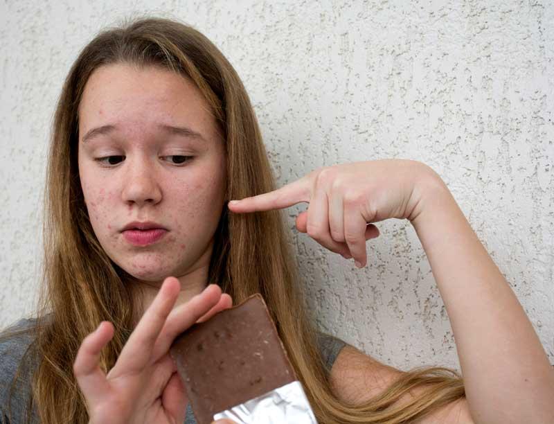čokoloda uzrok akni i bubuljica