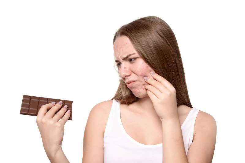 čokolada i akne