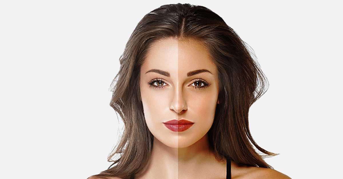hidrohinon krema za lice