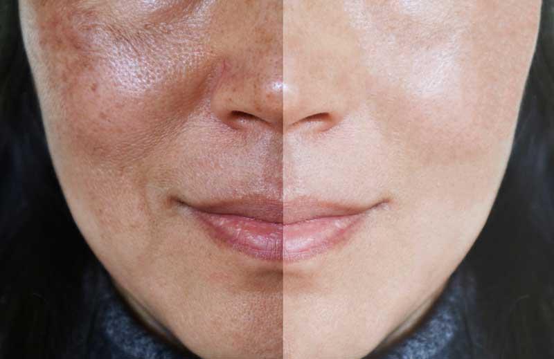 melanin na licu