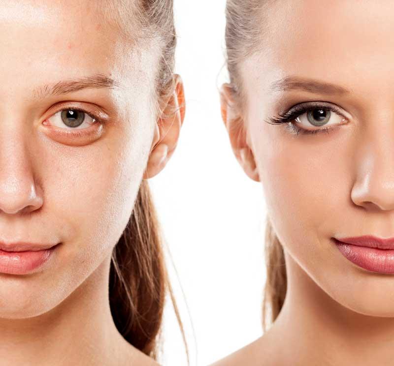 rešenje za kesice ispod očiju