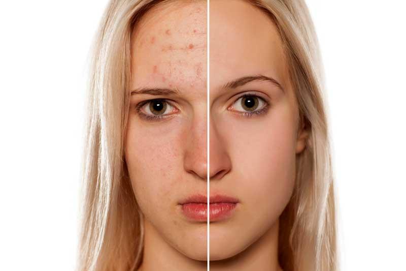 kako se rešiti akni na licu