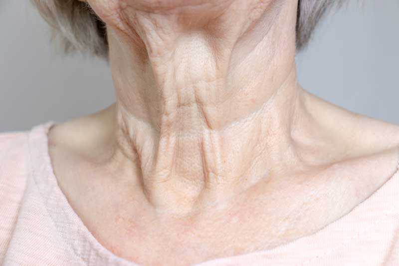 opuštena koža na vratu