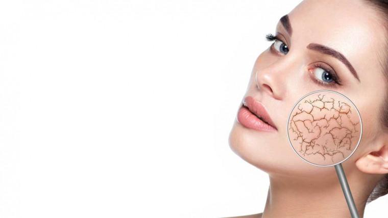 dehidrirana koža lica