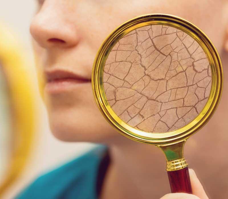 dehidrirana suva koža lica