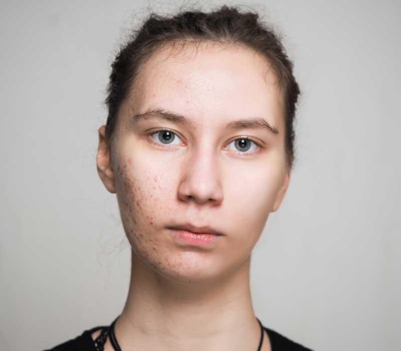 akne na obrazima