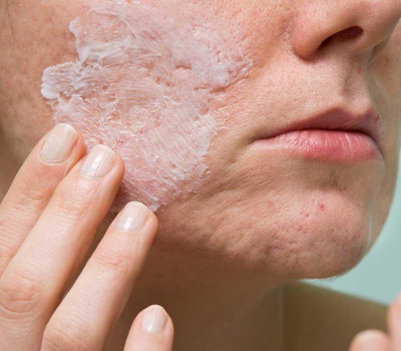 uklanjanje ožiljaka od akni