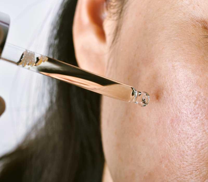 serum za negu masne kože lica