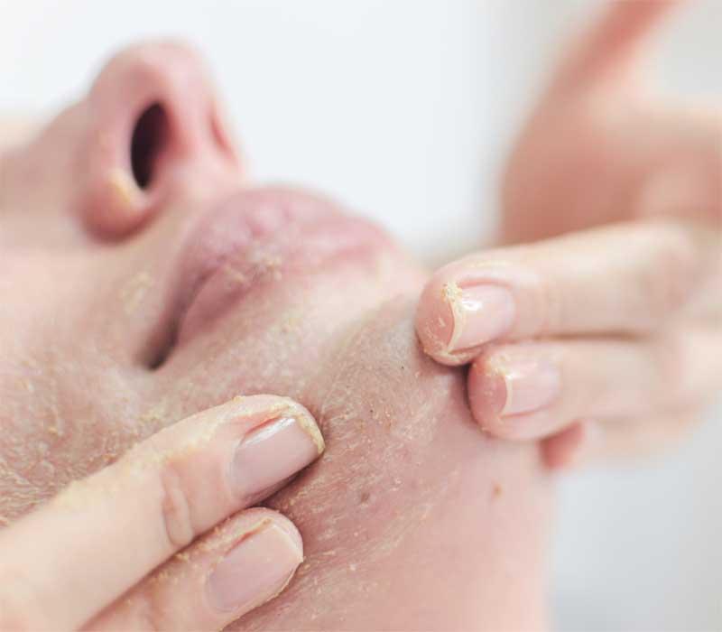 uklanjanje mrtvih ćelija kože pilingom