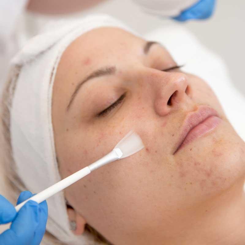 mlečna kiselina za lice upotreba