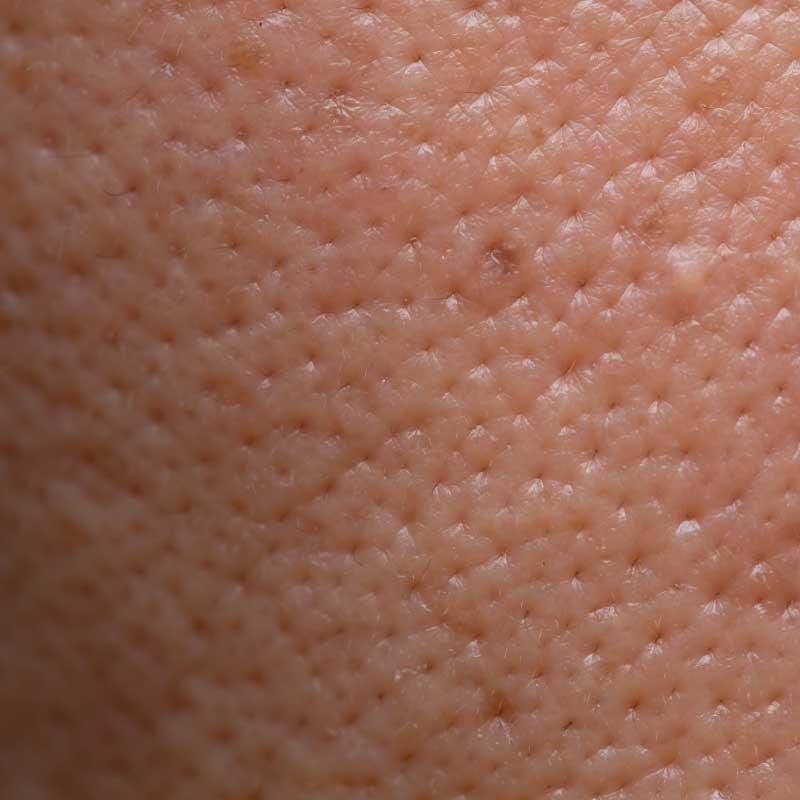krema koja sužava proširene pore