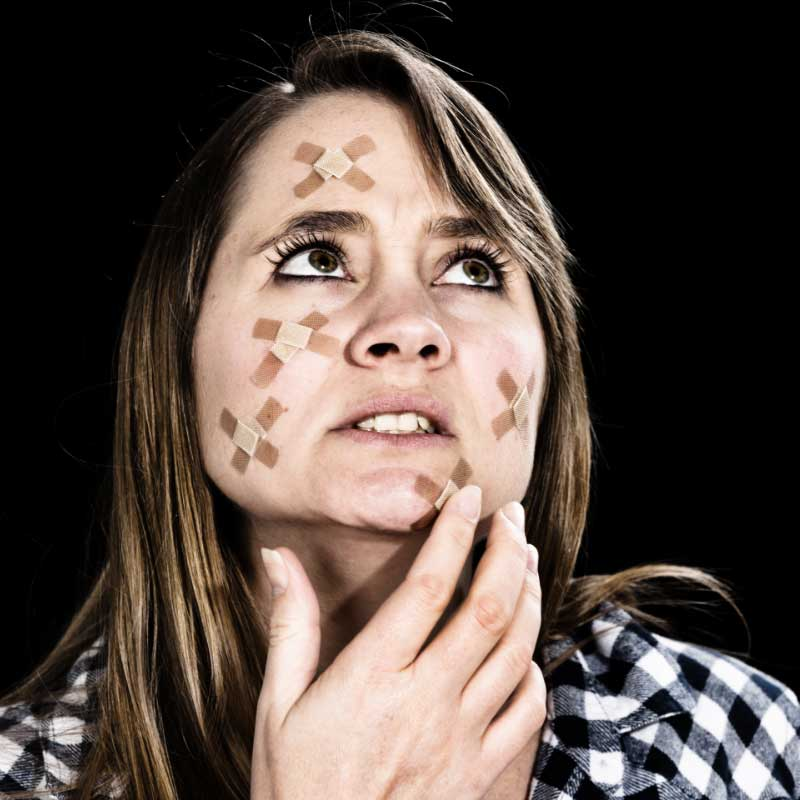 rane od akni