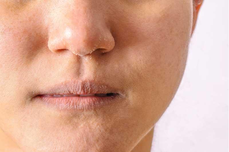 perutanje lica