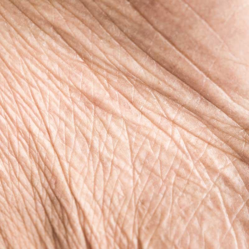 smežurana koža