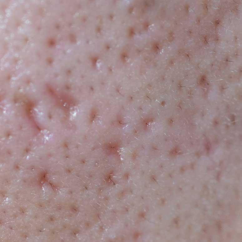 simptomi masne kože