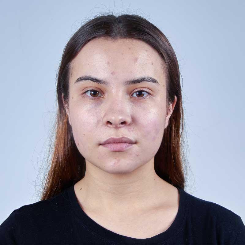 masna koža na licu