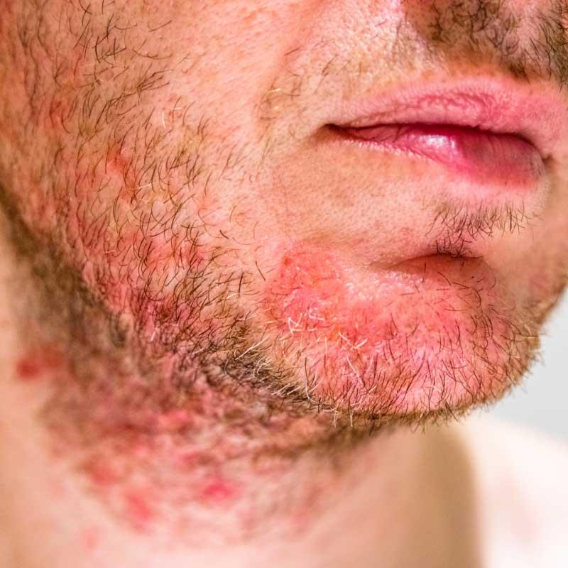 dermatitis koji liči na akne