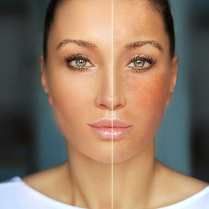 uklanjanje hiperpigmentacije