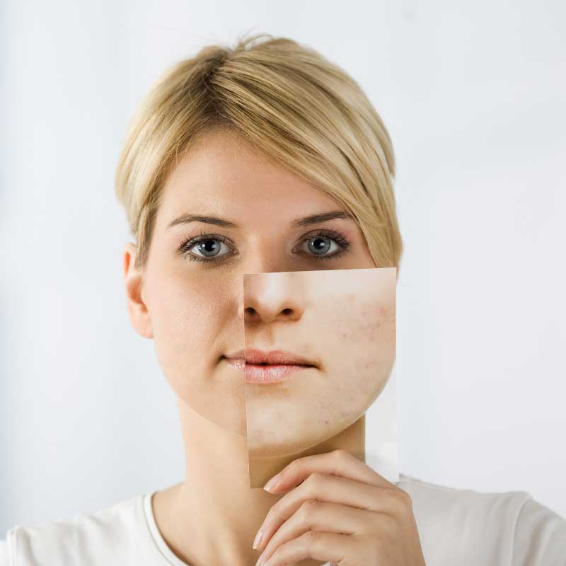 problematična koža lica simptomi