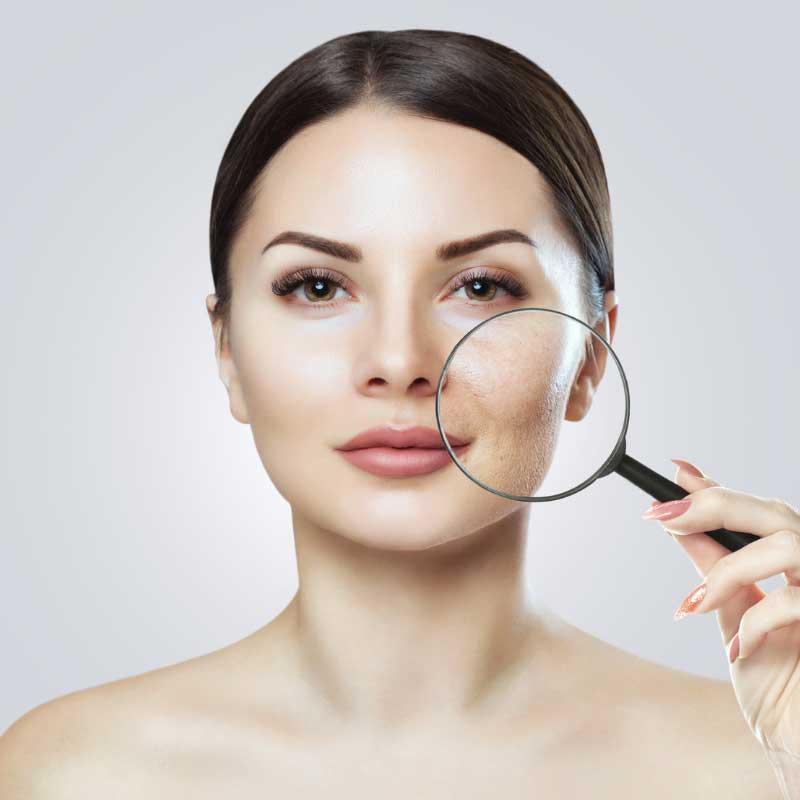 zdravlje kože lica